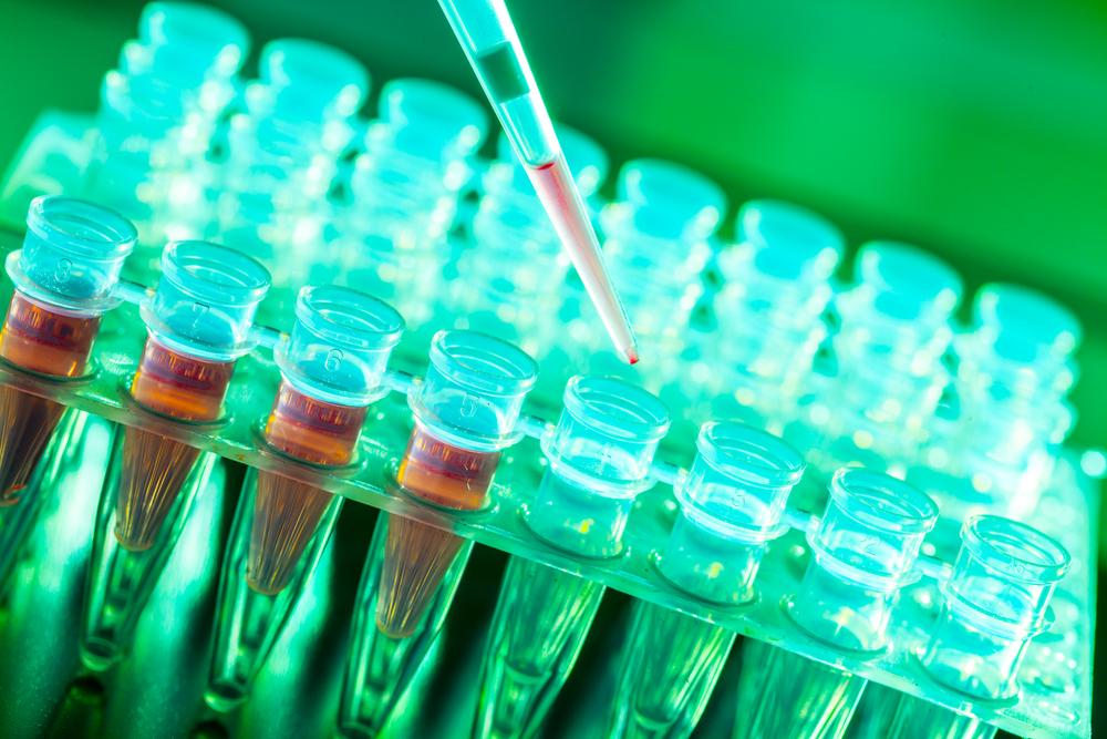 Investigaciones demuestran que una proteína puede desencadenar el Parkinson