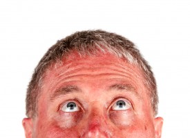 Quemaduras solares, cómo aliviarlas