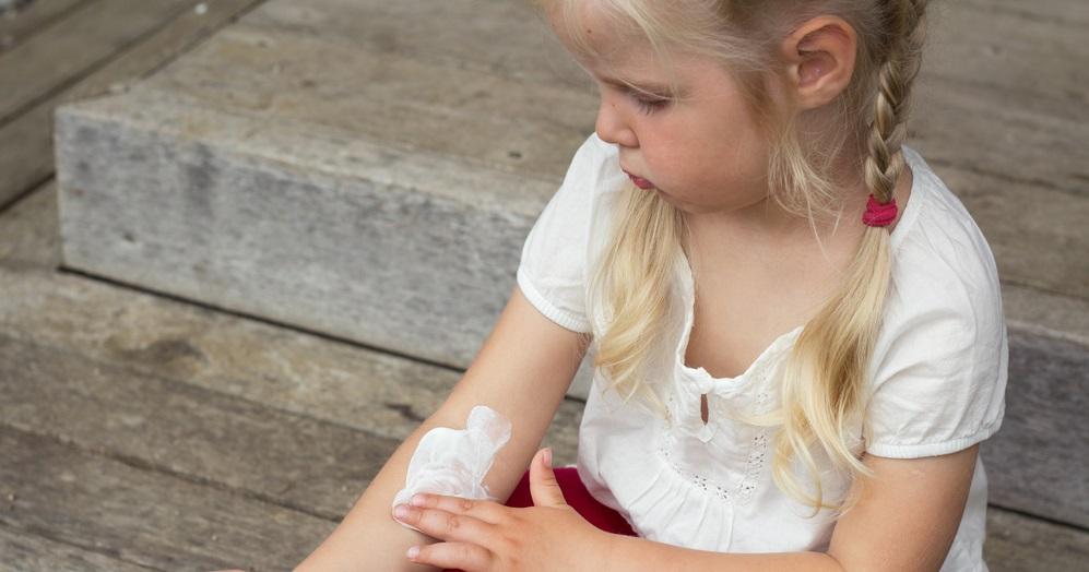 Dermatitis atópica infantil, aprende mientras juegas