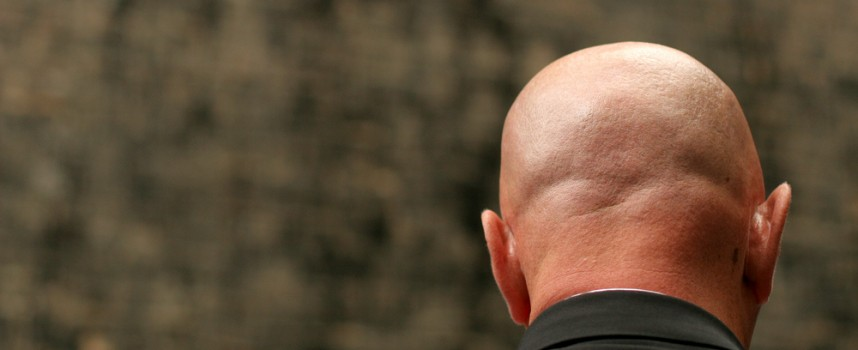 La calvicie ya no es un problema