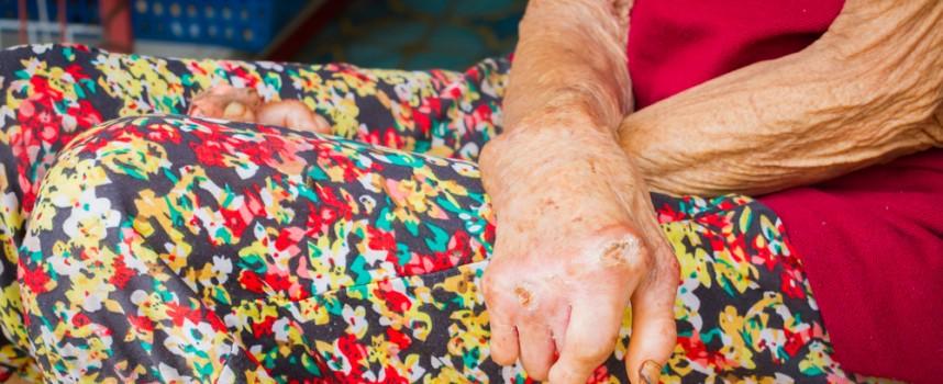 La Fundación Novartis sigue luchando contra la lepra