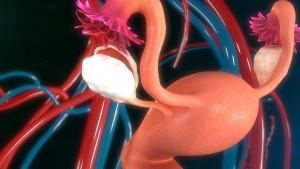 cáncer decuello de útero