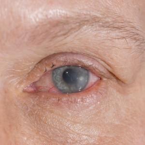 Cuidado de las lentillas