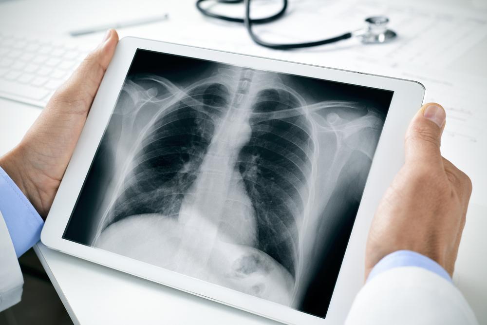 HM Hospitales impulsa el programa de detección precoz de cáncer de pulmón