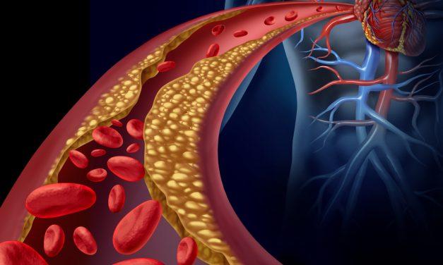Colesterol, ¿amigo o enemigo?