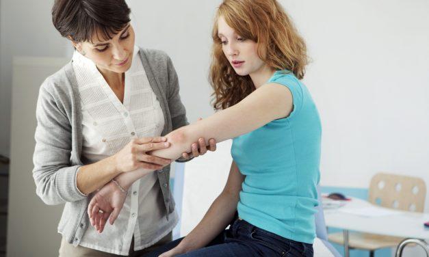 Psoriasis: diagnóstico, tratamiento y prevención