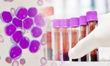 Novartis y la SEHH celebran el Día de la Leucemia Mieloide Crónica con una charla sobre los últimos avances