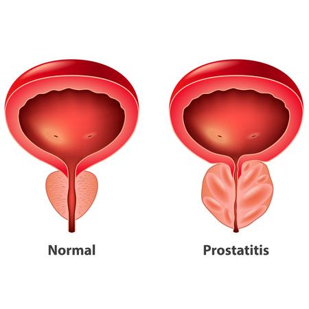 la próstata que síntomas pueden dar 2020