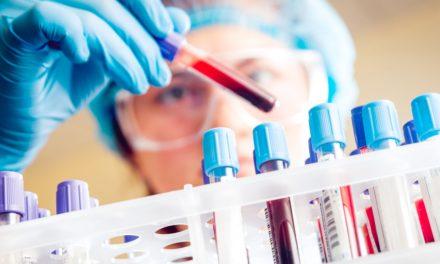 Listeriosis: qué es, prevención y síntomas